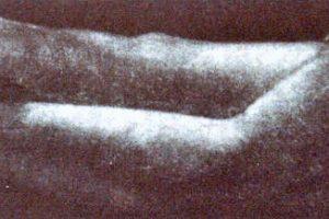 CUENTA CONMIGO. Grabado (Mezzotinta, 25 x 6 cm). 1996
